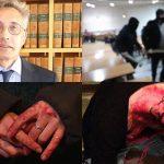 Grève à Montpellier : Philippe Pétel, doyen de la fac, a-t-il fait ratonner les étudiants ?